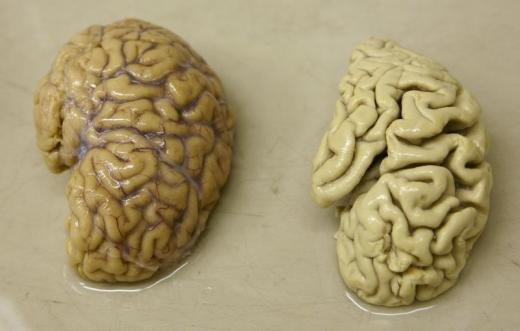 One hemisphere of a healthy brain (L) is pictured next to one hemisphere of a brain of a person suffering from Alzheimer's disease, at the Morphological unit of psychopathology in the Neuropsychiatry division of the Belle Idee University Hospital in Chene-Bourg near Geneva March 14, 2011. REUTERS/Denis Balibouse