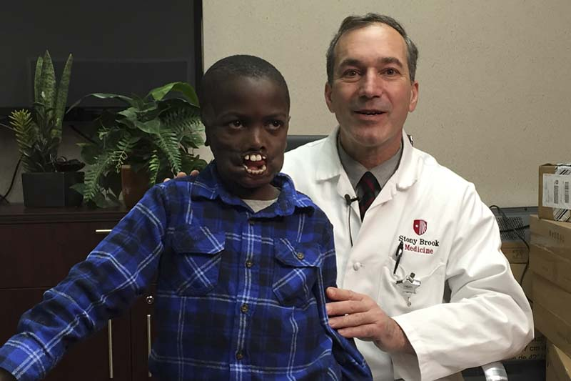Eight-year-old Dunia Sibomana (left) poses for a photo with Dr. Alexander Dagum, chief of plastic and reconstructive surgery at Stony Brook Children's Hospital, on Monday, January 4, 2016 in Stony Brook, New York. Photo: AP