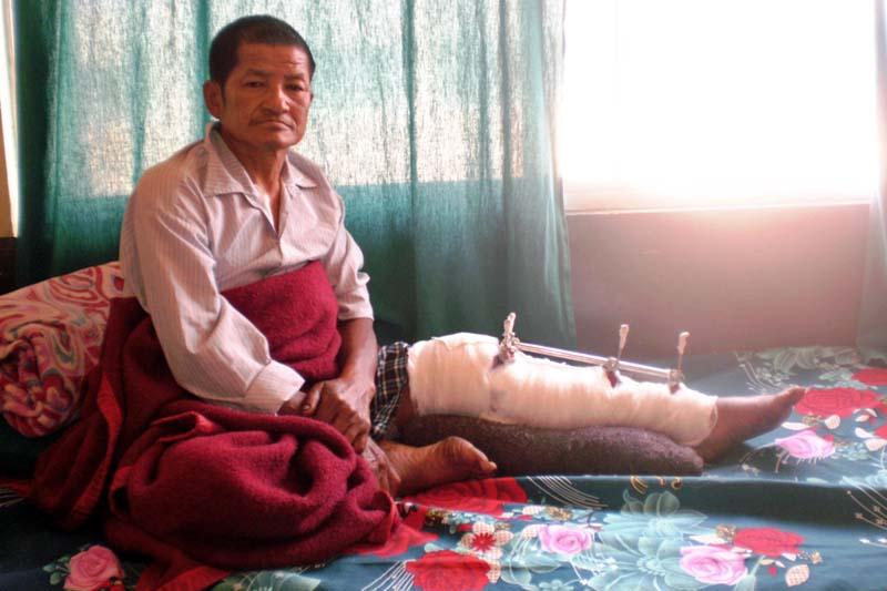 Quake survivor, Nara Bahadur Baram, who was admitted to the Tribhuvan University Teaching Hospital in Kathmandu, on Thursday, January 7, 2015. Courtesy: Prem Bahadur Baram