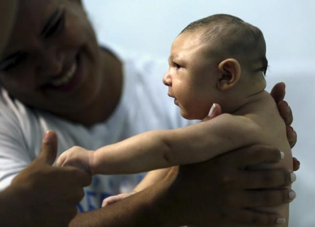 Therapist Rozely Fontoura holds Juan Pedro, who has microcephaly, in Recife, Brazil March 26, 2016. REUTERS/Paulo Whitaker