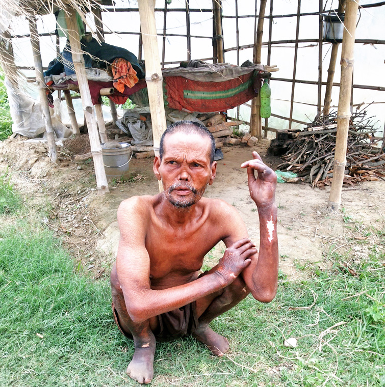 Inar Dev Ram, living in a makeshift hut near the Gandak canal, after being abandoned from family because of leprosy, at Namanagra, Basantapatti VDC-3 in Rautahat district, on Thursday, July 7, 2016. Photo: Prabhat Kumar Jha