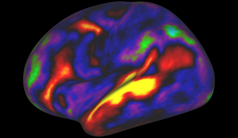 The pattern of brain activation (red, yellow) and deactivation (blue, green) in the left hemisphere when listening to stories while in the MRI scanner is pictured in this undated handout image.Photo: REUTERS
