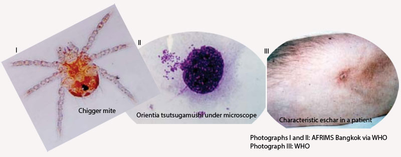 Scrub typhus is caused by Orientia tsutsugamushi, an obligate intracellular gram-negative bacterium, which is transmitted to humans and rodents by chigger mites.