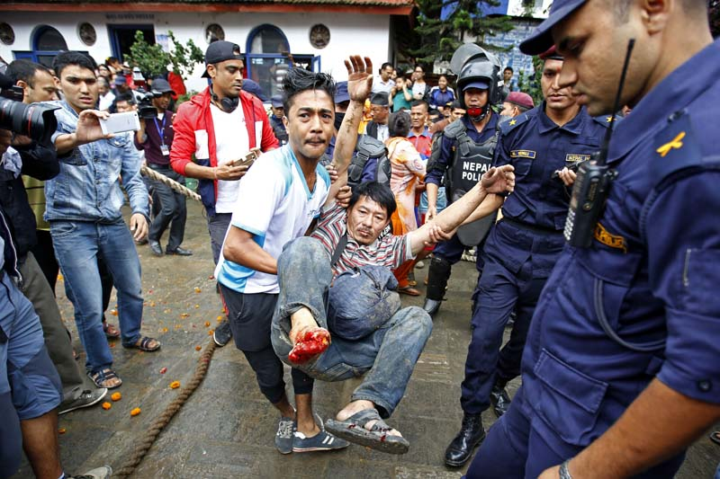 Man, who was injured after the ceremonial lingo (a wooden pole) fell upon him, being is carried to a hospital, at the premises of the Hanumandhoka Durbar Square in Kathmandu, on Tuesday, September 13, 2016. Photo: Skanda Gautam/ THT
