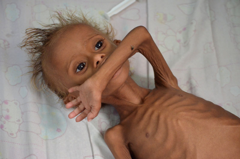 A malnourished boy lies on a bed at a hospital in the Red Sea port city of Houdieda, Yemen, on September 9, 2016. Photo: Reuters