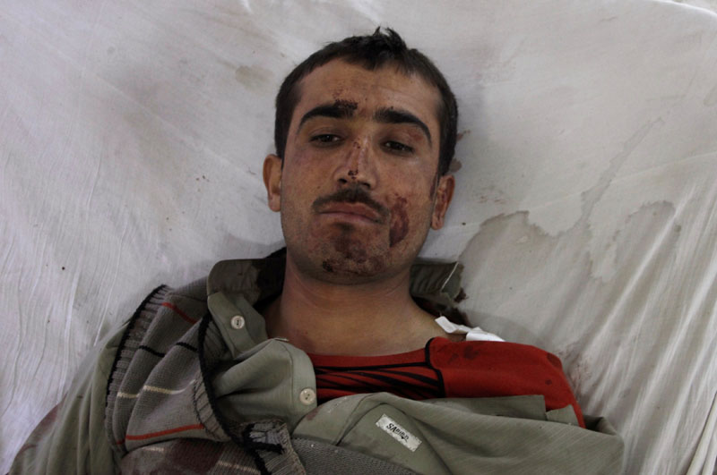 A police cadet from the Police Training Center lies in the hospital after being injured after an attack on the center in Quetta, Pakistan, on October 25, 2016. Photo: Reuters