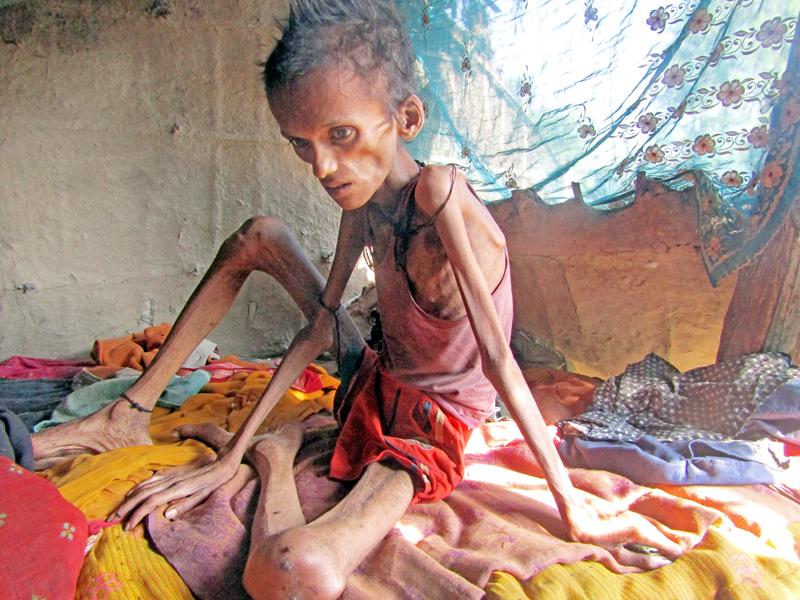 Shambhu Kumar Ram, 17, who is suffering from malnutrition, at Dadha VDC, Saptari, on Thursday, November 17, 2016. Photo: THT