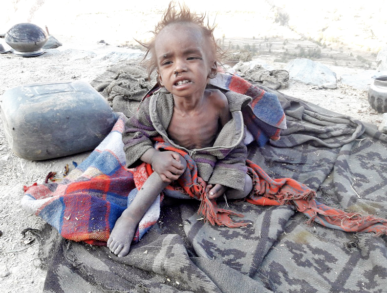 This photo shows five-year-old Pawan Nepali, who died of malnutrition one-and-a-half months ago for want of treatment, in Photu VDC, Mugu. Photo: THT