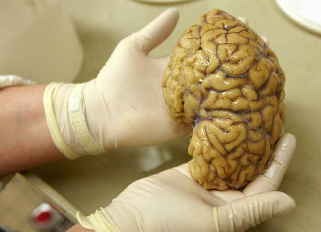 FILE PHOTO: A laboratory assistant holds one hemisphere of a healthy brain in the Morphological unit of psychopathology in the Neuropsychiatry division of the Belle Idee University Hospital in Chene-Bourg near Geneva, Seitzerland in a March 14, 2011. Photo: Reuters