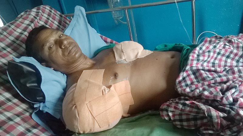 46-year-old Prasad Chaudhary of Dharampur, Khairhani Municipality-13 in Chitwan district, undergoing treatment at the Bharatpur-based Alive Hospital and Trauma Centre, on Friday, June 2, 2017. He lost his right arm in a crocodile attack while he was fishing in local Echarni River on Wednesday.