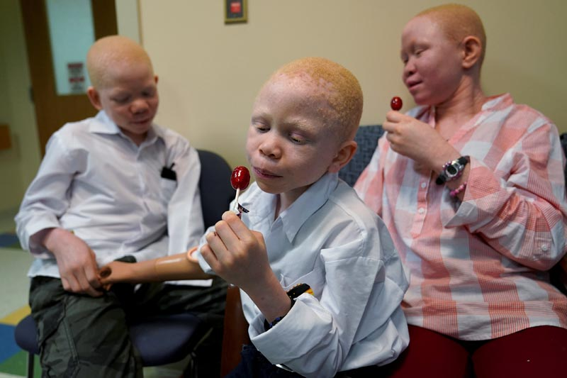 Mwigulu Magesaa (left), 14, Baraka Lusambo, (centre), 7, and Pendo Noni 16, wait in the lobby during prosthetic arm fittings at the Shriners Hospital in Philadelphia, Pennsylvania, US, on May 30, 2017. Photo: Reuters/ File