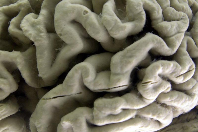 A section of a human brain with Alzheimeru2019s disease is on display at the Museum of Neuroanatomy at the University at Buffalo, in Buffalo, New York, on October 7, 2003. Photo: AP/ File