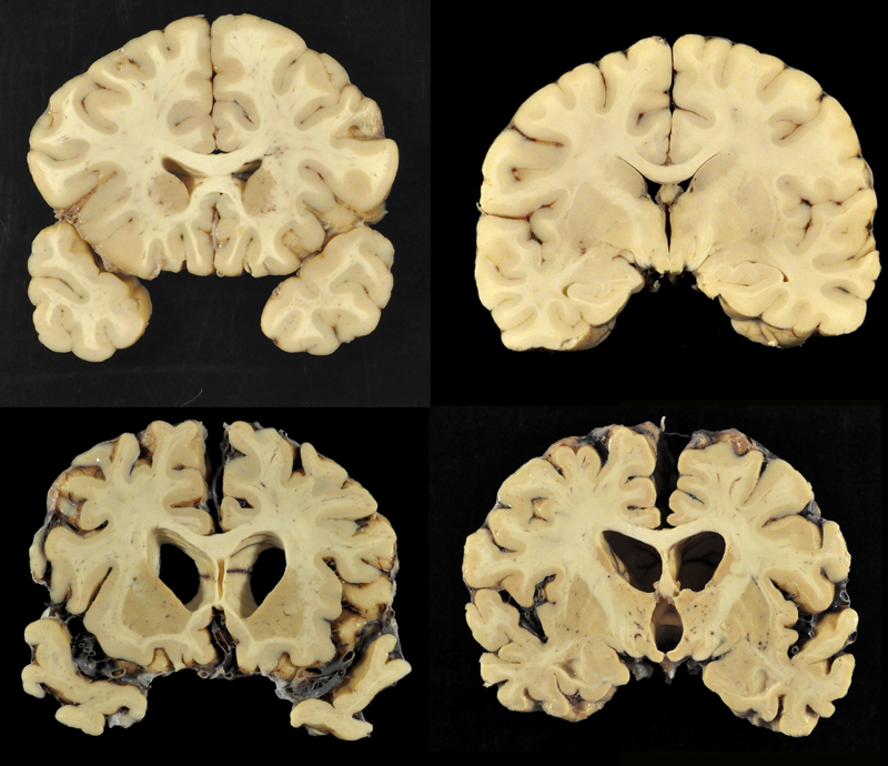 This combination of photos provided by Boston University shows sections from a normal brain, top, and from the brain of former University of Texas football player Greg Ploetz, bottom, in stage IV of chronic traumatic encephalopathy. According to a report released on Tuesday, July 25, 2017 by the Journal of the American Medical Association, research on 202 former football players found evidence of a brain disease linked to repeated head blows in nearly all of them, from athletes in the National Football League, college and even high school. Photo: AP