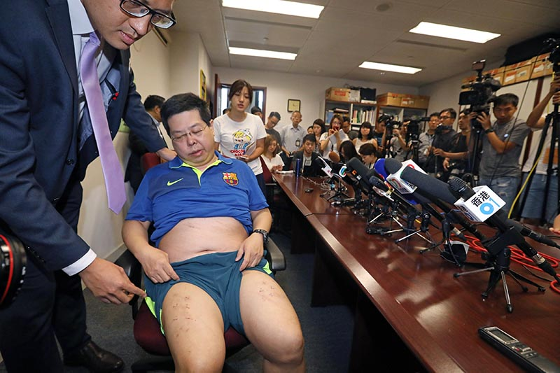 Democratic Party member Howard Lamu00a0shows off his injury at a news conference in Hong Kong, China, on August 11, 2017. Photo: Apple Daily via Reuters