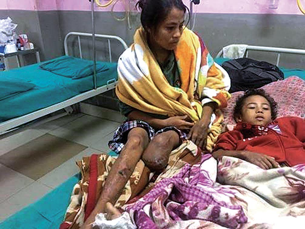 Sarita Rai and her son, the victims of Chandrapur blast, receiving treatment in Chitwan Medical College, on Saturday. Photo: THT