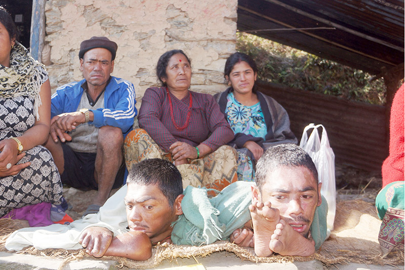 Duo with congenital disorder and their family members sit on the premises of their house at Dehi village in Pokhara Lekhnath Metropolitan City, on Thursday, February 01, 2018. Photo: Bharat Koirala