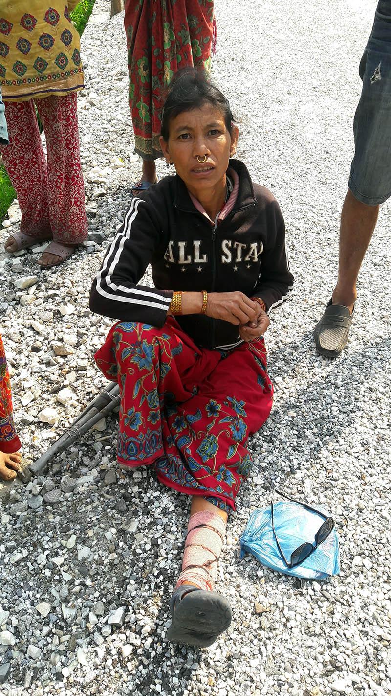 A woman shows her fractured leg in Bajura. Photo: Prakash Singh