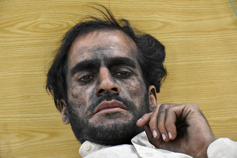 A worker, who survived after a coal mine explosion in Marwar area, rests at a hospital in Quetta, Pakistan, on May 5, 2018. Photo: Reuters