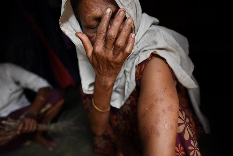 A Rohingya refugee woman shows bullet and shrapnel wounds on her arm at Shamlapur refugee camp in Cox's Bazaar, Bangladesh, on March 26, 2018. The wounds are from when she was hit by the Myanmar army as she tried to escape in September 2017. Photo: Reuters