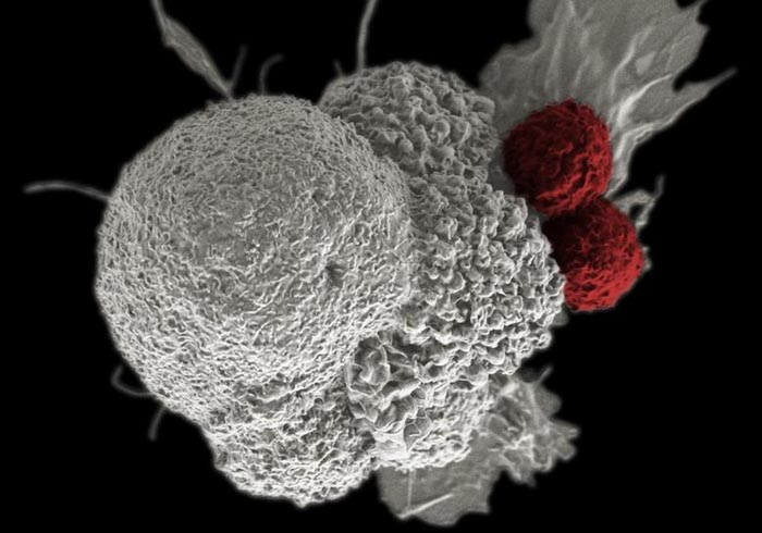 An oral squamous cancer cell (white) being attacked by two cytotoxic T cells (red), part of a natural immune response. Photo: National Cancer Institute via Reuters