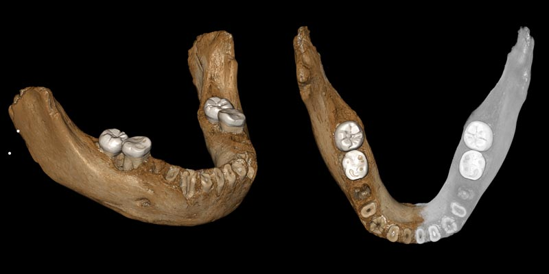 This combination of images provided by the Max Planck Institute for Evolutionary Anthropology, Leipzig shows two views of a virtual reconstruction of the Xiahe mandible. Photo: Jean-Jacques Hublin, MPI-EVA, Leipzig via AP