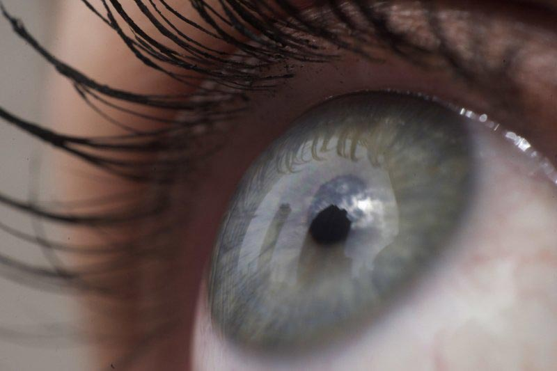 FILE - This April 12, 2018 file photo shows the eye of a woman in New York. Patients are about to be enrolled in the first study to test gene editing inside the body to try to cure an inherited form of blindness.  Photo: AP