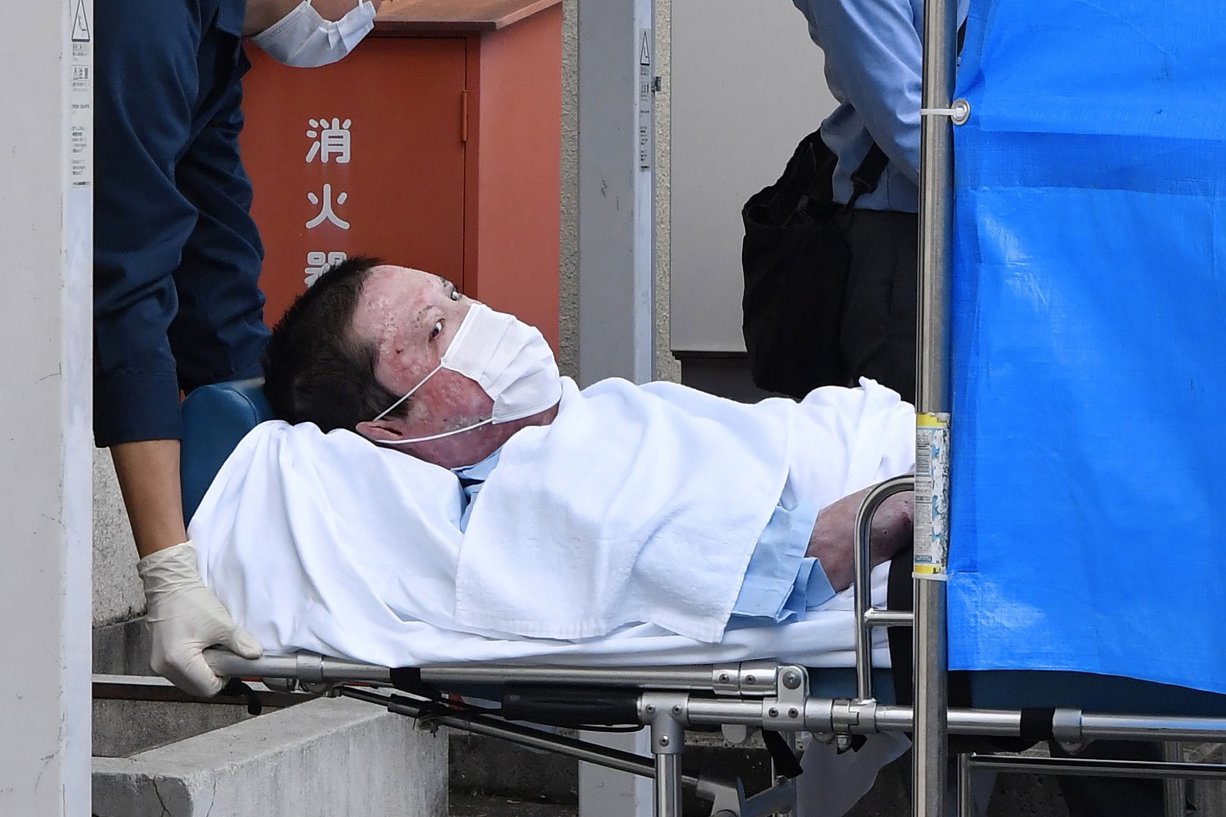 Shinji Aoba on a stretcher is carried to Fushimi police station after being arrested in Kyoto, western Japan, Wednesday, May 27, 2020. Japanese police arrested the suspect in a deadly arson at Kyoto Animation's No. 1 studio on July 18, 2019 after the alleged attacker regained enough strength from his own injury to respond to police investigation. Aoba is accused of storming into the studio, setting it on fire and killing 36 people. Wednesday's arrest comes 10 months after the police obtained permission from a local court as they had to wait for Aoba, who had suffered severe burns and was in a critical condition. (Ryosuke Ozawa/Kyodo News via AP)